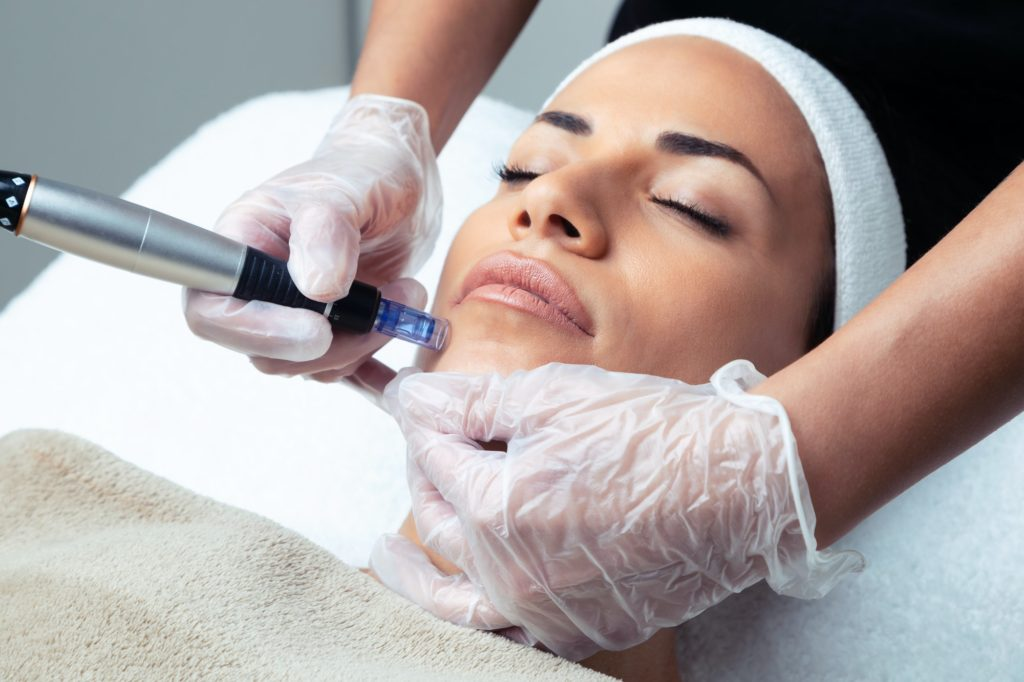 Microneedling At Home: What Does It Do? Best Serums For Microneedling